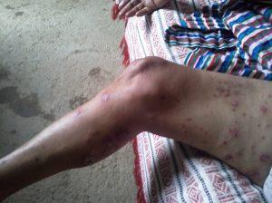 infección 2